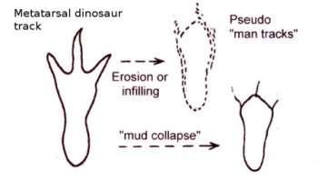 metatarsal track diagram3